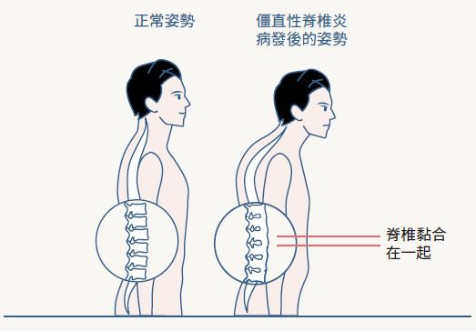 關節炎症狀又發作了,四種常見的關節炎種類 (下)